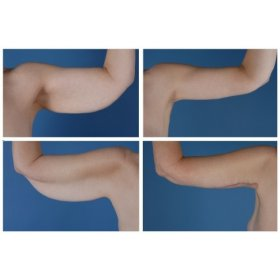 Upper Arms Shape