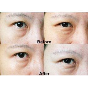 Eye Cream Vitamin E (15Ml)