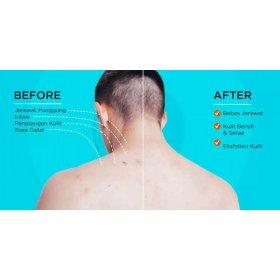 Acne Care Lab - Back Spray (60ml)