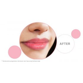 Kji & Co - Lip Spa | Perawatan Bibir